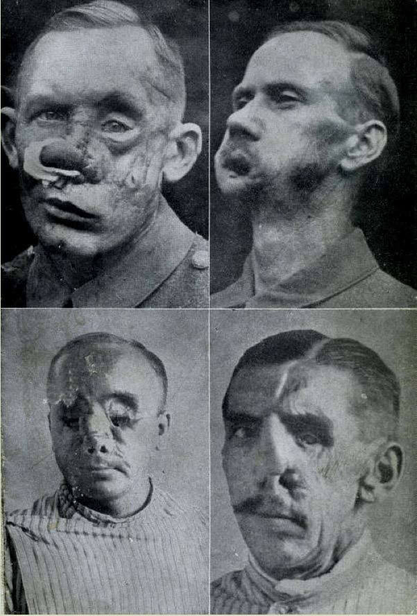 world-war-i-disfigured-veterans